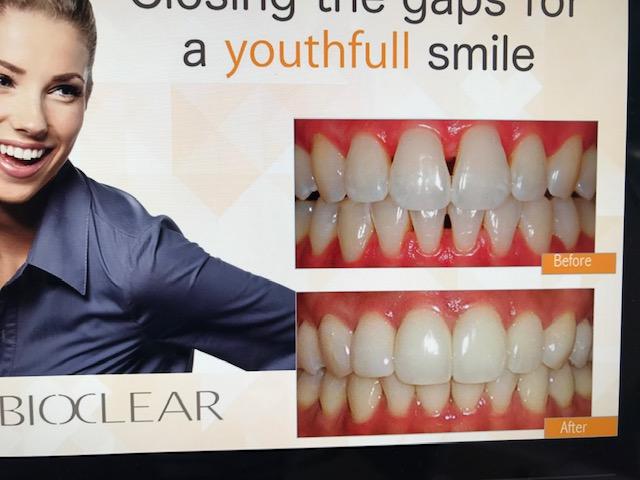 BIOCLEAR©- Die neue Methode für schöne Zähne aus den USA